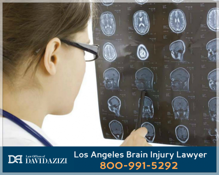 Head Injury Lawyer Los Angeles - David Azizi