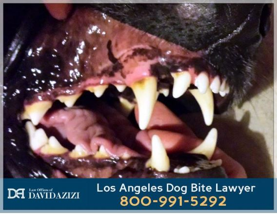 Dog Bite Lawyer Los Angeles - Law Offices of David Azizi