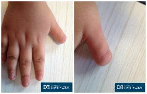 Child's Hand with Amputated Thumb
