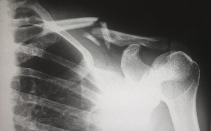 Shoulder Pain from Car Accident - Law Offices of David Azizi